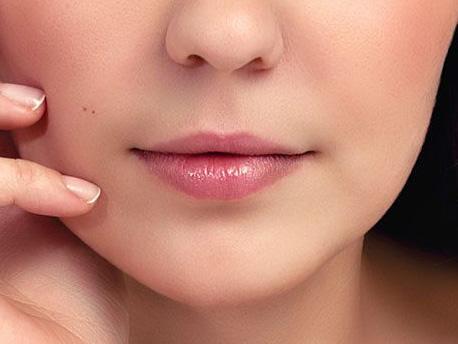 minilifting du visage