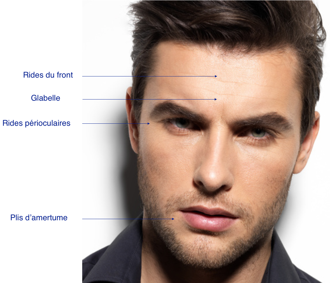 injection de botox homme